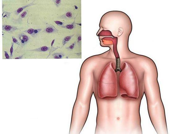 Респираторный хламидиоз: симптомы, лечение