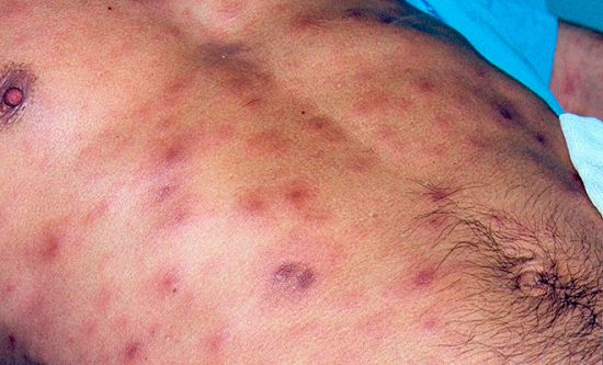 Сифилис у мужчин: признаки, диагностика и лечение