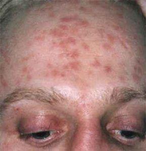 Лечение и симптомы сифилиса