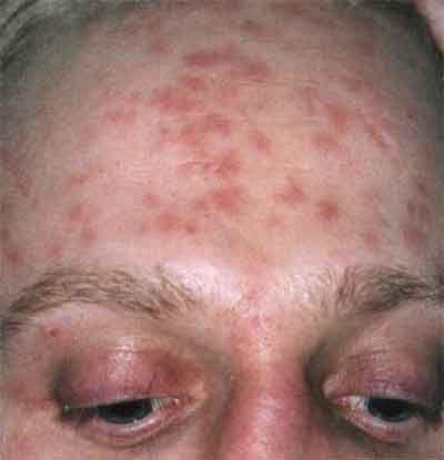 Лечение и симптомы сифилиса: у женщин, фото