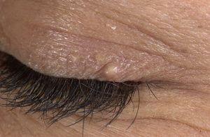 Липома на лице: симптомы и причины
