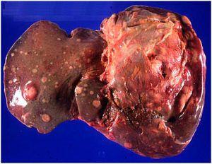Метастазы после рака почки