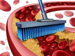 Чем чистить сосуды от холестериновых бляшек?