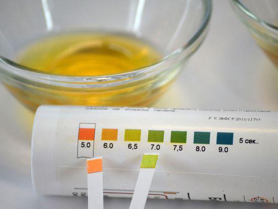 Как вывести ацетон из мочи в домашних условиях 93