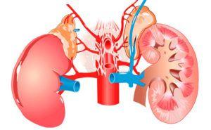 Симптомы болезни почек и лечение
