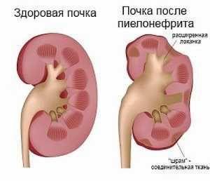 Осложнения пиелонефрита