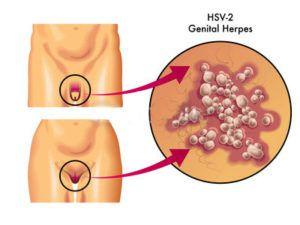 Генитальный герпес: как лечить?
