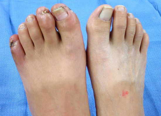 Гангрена ноги при диабете 2 типа