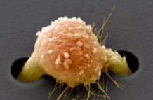 Рак почки 4 степени с метастазами, сколько живут?