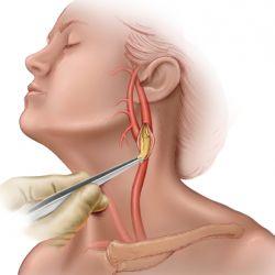 Операция на сонной артерии при атеросклерозе