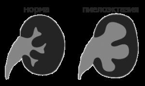 Пиелоэктазия у плода