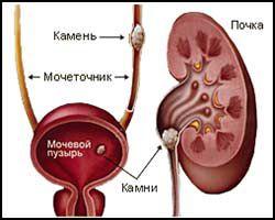 Мочекаменная болезнь: лечение народными средствами