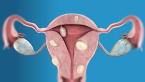 Фиброма и миома матки: в чем отличие?