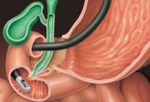 Хронический гастрит желудка
