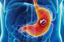 Лечение рака желудка: препараты и диета