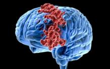 Рак головного мозга: причины, стадии, симптомы