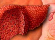 Цирроз печени (рак печени)