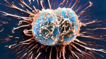 Химиотерапия при лимфоме