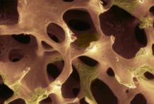Рак костей: причины развития и методы лечения