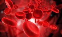 Рак крови: развитие, первые  симптомы, причины и лечение заболевания