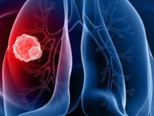 Рак легких и его стадии