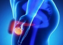 Рак яичка у мужчин — как бороться с болезнью?
