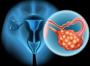 Прогноз при раке яичников