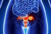 Диагностика и стадии рака яичников у женщин