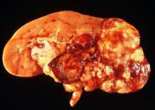 Светлоклеточный рак почки