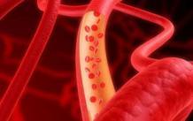 Как поднять тромбоциты в крови после химиотерапии?