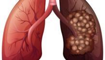 Рак легких 1 стадия: симптомы, диагностика, лечение