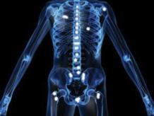 Метастазы в костях. Продолжительность жизни