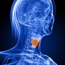 Рак гортани 4 стадия — продолжительность жизни