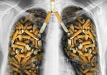 Сколько нужно курить, чтобы получить рак легких?
