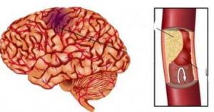 Атеросклероз сосудов головного мозга: как лечить