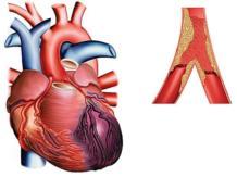Инфаркт на ногах — как возможно перенести заболевание?