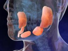 Аденома околоушной слюнной железы
