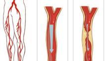 Сужение сосудов нижних конечностей лечение