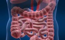 Тубулярная аденома с дисплазией эпителия 1 степени