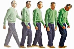Болезнь Паркинсона. Симптомы