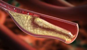 Прионные болезни: симптомы, причины