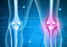 Артрит: особенности развития болезни