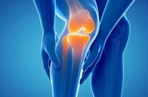 Артроз - симптомы и лечение