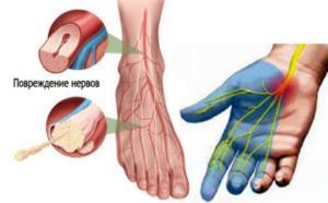 Полиневропатия - симптомы