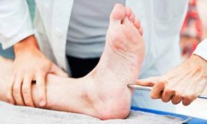 Полиневропатия - лечение