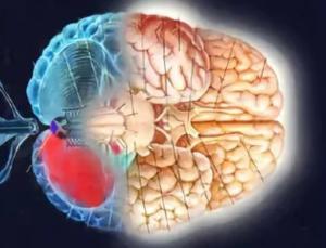 Мозжечковый тремор: причины