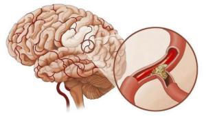 Мигренозный инсульт: симптомы