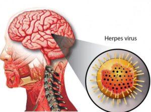 Симптомы и причины краснюшного энцефалита