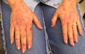 Порфирия: симптомы и причины
