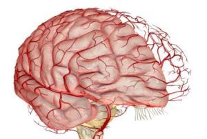 Церебральная ангиография сосудов - причины